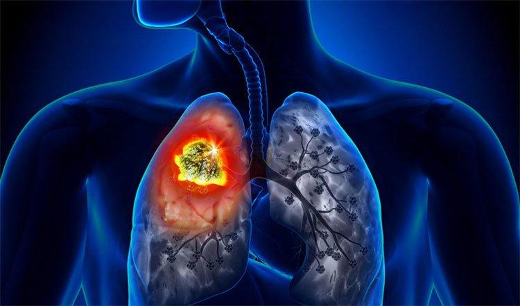 Những loại ung thư có tính di truyền qua nhiều đời mà bạn nên nắm rõ