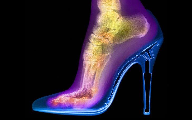 Những sự thật kinh ngạc mà bạn chỉ có thể nhìn thấy dưới ống kính X-quang