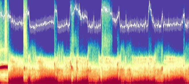 Phát hiện âm thanh bất thường phát ra từ não người