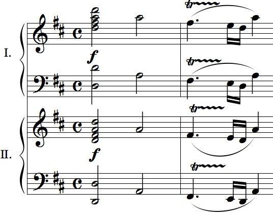 Phát hiện chìa khóa ở bản nhạc của Mozart giúp xoa dịu người bệnh động kinh
