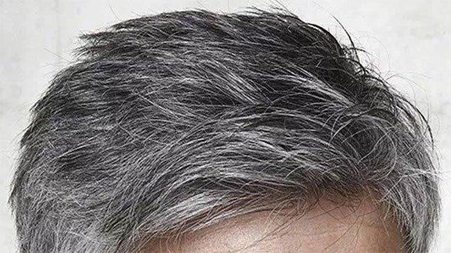 Phát hiện nguyên nhân tại sao căng thẳng lại khiến tóc bạc
