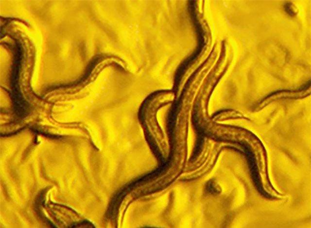 """Phát hiện ra loại vi khuẩn """"vàng"""" có khả năng """"tiêu diệt"""" giun ký sinh"""