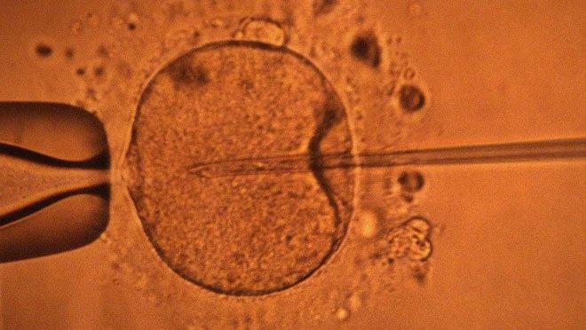 Phát hiện vai trò mới đặc biệt quan trọng, đảo lộn mọi hiểu biết hiện tại về tinh trùng