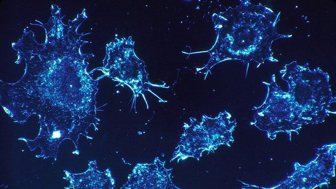 Phát hiện yếu tố ngay trong cơ thể khiến tế bào ung thư tự sát