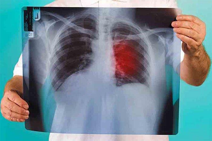 Phương pháp đột phá đưa phổi ra khỏi cơ thể để làm sạch ung thư