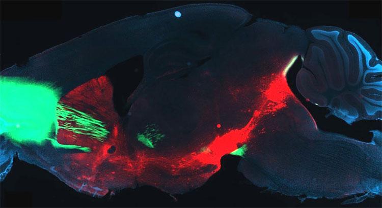 Phương pháp mới: Cai nghiện ma túy ngay từ trong não