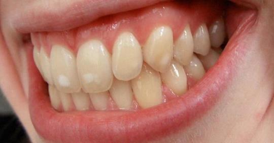 Răng của bạn có đốm trắng kỳ lạ này? Đây là lý do chúng xuất hiện