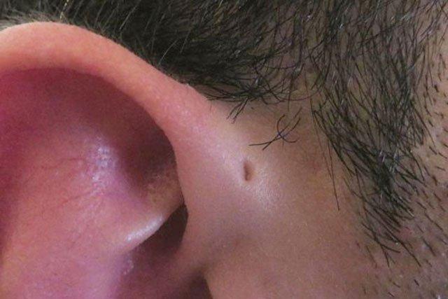 Rò luân nhĩ: Nguyên nhân, triệu chứng và cách điều trị