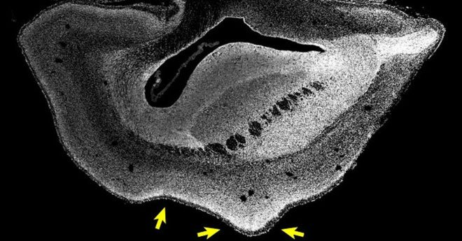 Sử dụng gene người, các nhà nghiên cứu tăng thành công kích cỡ và nếp nhăn của não khỉ