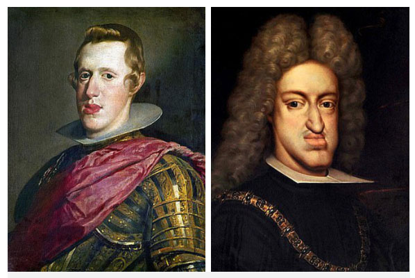 Sự thật đằng sau căn bệnh hàm bạnh ám ảnh Hoàng tộc châu Âu suốt 4 thế kỷ