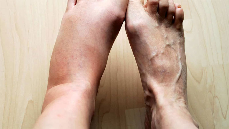 Tại sao cơ thể lại sưng khi bị viêm?