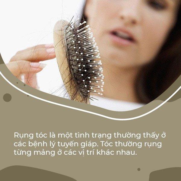 Tại sao rụng tóc lại liên quan đến rối loạn chức năng tuyến giáp?