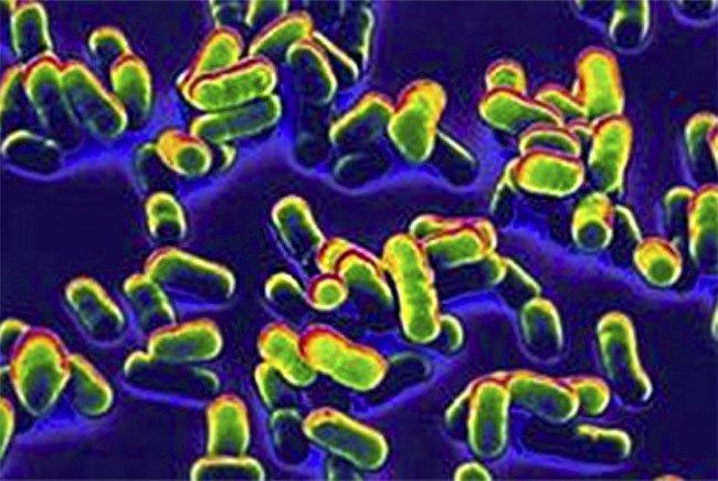 Tại sao vi khuẩn dịch hạch không thể bị diệt trừ hoàn toàn trên hành tinh?