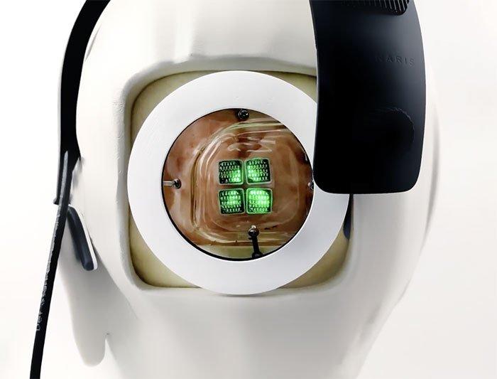 Thiết bị cấy vỏ não phục hồi thị lực người mù