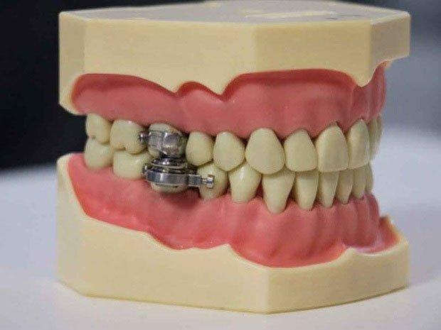 Thiết bị khóa hàm răng cho người muốn giảm cân