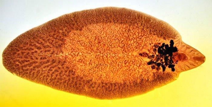 Thói quen ăn uống có thể khiến bạn không nhiễm sán cũng có ngày mất gan