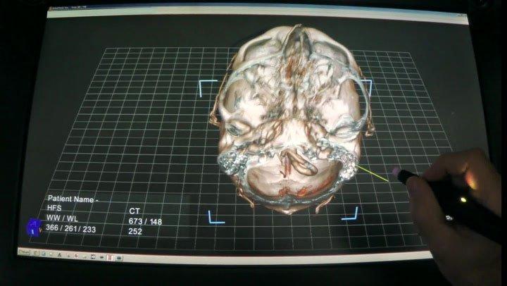 Tìm ra phương thức điều trị tốt nhất nhờ chuyển hình ảnh cắt lớp thành 3D
