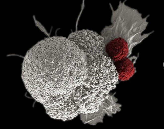 Tin vui: Tìm ra chất làm thuốc trị ung thư mới khiến tế bào ung thư chết đói