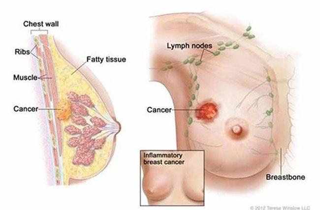 Top 14 bệnh ung thư nguy hiểm nhất hiện nay