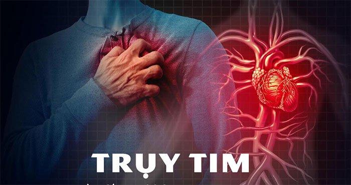 Trụy tim: Nguyên nhân, triệu chứng và cách điều trị