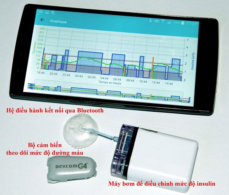 Tụy nhân tạo thông minh, tương lai cho bệnh nhân tiểu đường