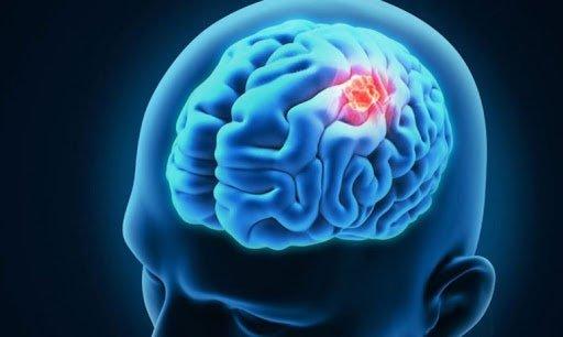 U màng não nguy hiểm như thế nào?