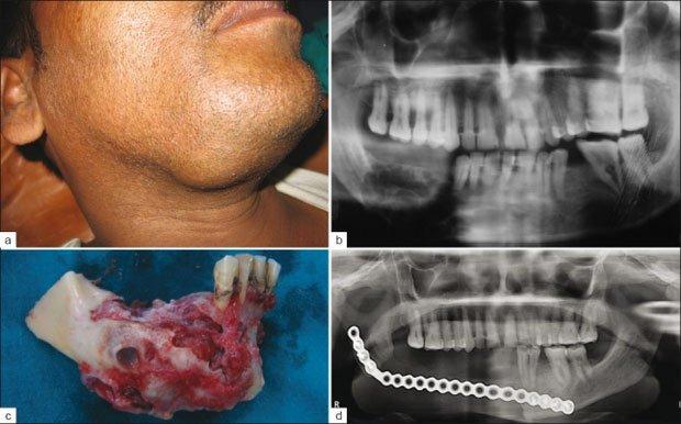 U men xương hàm là gì?
