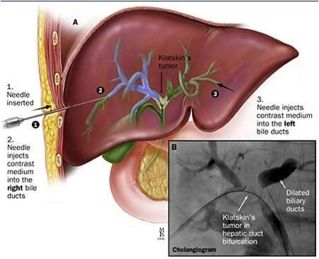 Ung thư đường mật - nguyên nhân, triệu chứng và cách điều trị