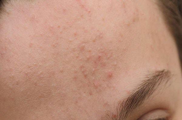 Vì sao da mặt bị sần?