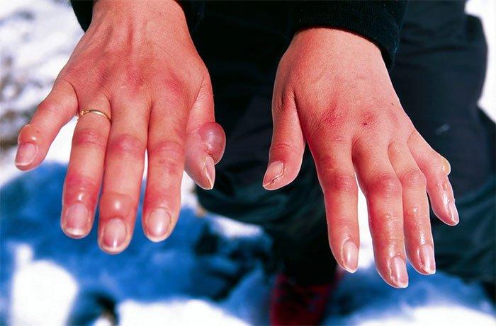 Vì sao giá lạnh quá mức có thể khiến người rụng ngón tay, bò rơi tai?