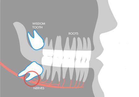 Vì sao hay mọc ngu lung tung mà chúng vẫn có tên là răng khôn?