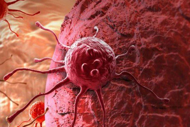 Vì sao tế bào ung thư lan nhanh bất thường?