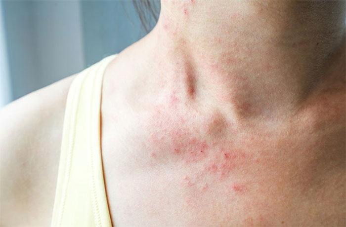 Viêm da dị ứng: Nguyên nhân, triệu chứng và cách điều trị
