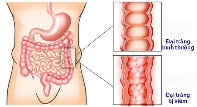 Viêm đại tràng: Nguyên nhân, triệu chứng và cách điều trị