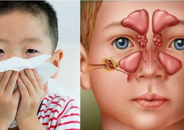 Viêm xoang ở trẻ em: Nguyên nhân, triệu chứng và cách điều trị
