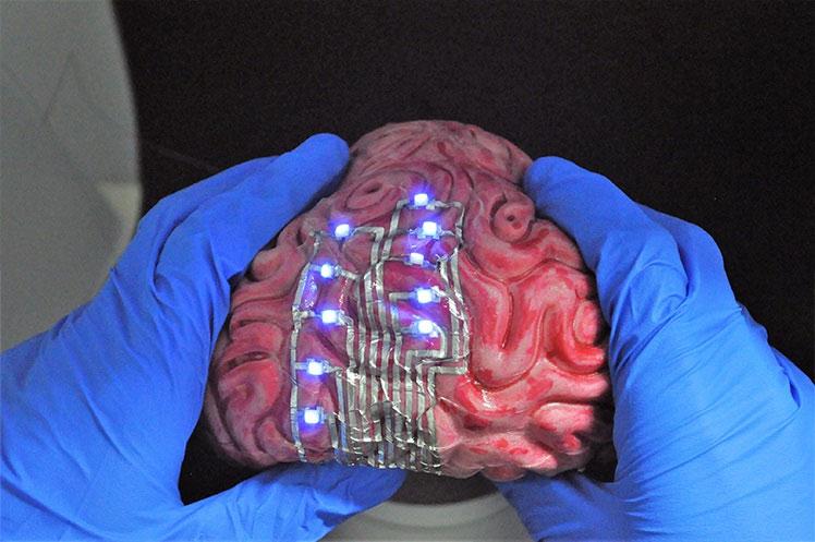 Xăm hình lên... não để điều trị bệnh, bước tiến mới của các nhà khoa học