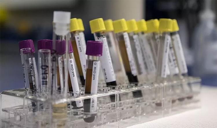 Xét nghiệm nhận biết được tất cả các chúng vi khuẩn thâm nhập cơ thể