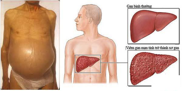 Xơ gan cổ trướng là gì? Triệu chứng, chẩn đoán và điều trị