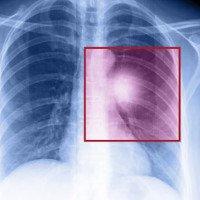 10 căn bệnh ung thư nguy hiểm nhất mọi thời đại