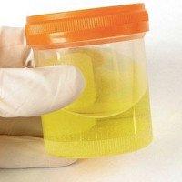 13 điều thú vị bất ngờ về nước tiểu