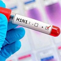 2 loại virus cúm gây tử vong ở người gần như đã tuyệt chủng