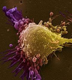 5 biến thể gen liên quan tới ung thư tiền liệt tuyến