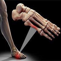 5 điều mọi người hay hiểu lầm về xương
