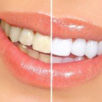 9 cách làm răng trắng hơn