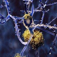 Alzheimer cũng có nhiều loại khác nhau