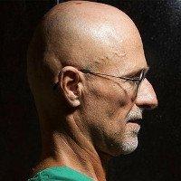Bác sĩ Italy tuyên bố ghép đầu thành công trên thi thể