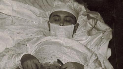 Bác sĩ tự phẫu thuật cắt bỏ ruột thừa