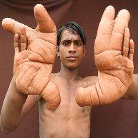 Bàn tay khổng lồ của cậu bé khiến y học bó tay