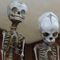 Bật mí về 6 trường hợp sử dụng cơ thể của người hiến xác