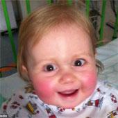 Bệnh lạ: Cô bé sinh ra không có hệ miễn dịch